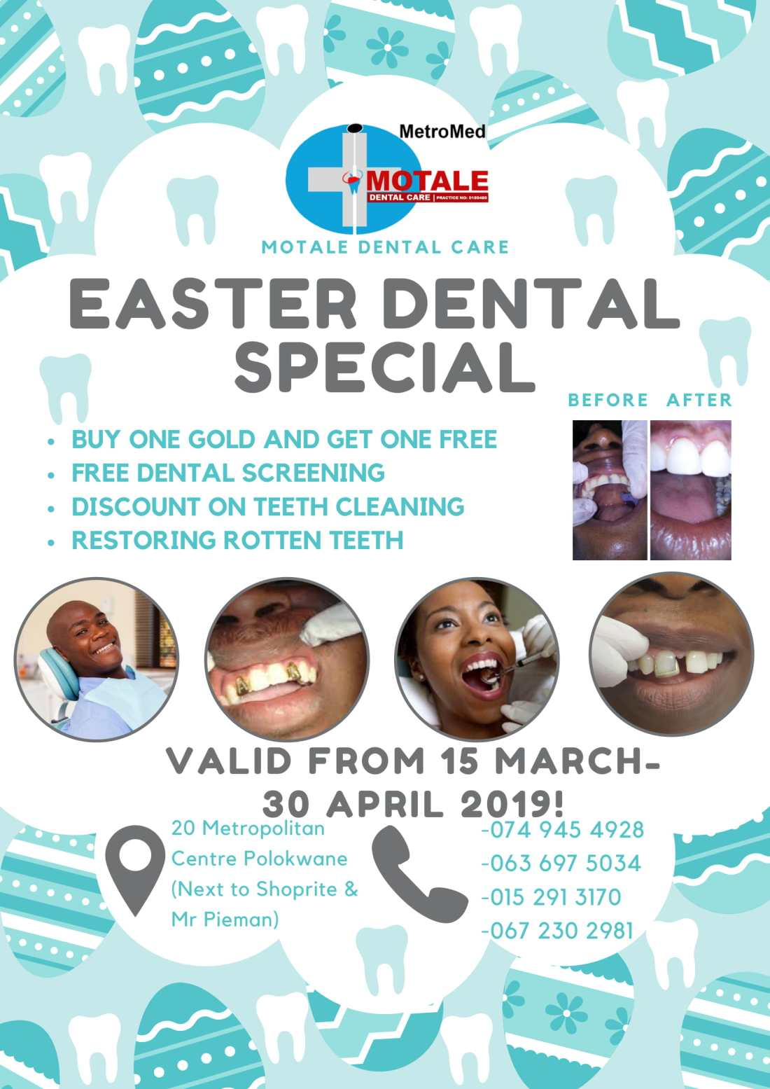 Easter Dentist Special 1-4-1